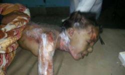 عشرات الضحايا اليمنيين في قصف (عشوائي) للطائرات السعودية