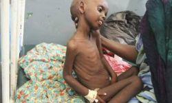 رئيس منظمة انسانية عالمية :باليمن يموت طفل كل عشر دقائق