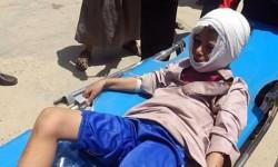 """العفو الدولية: قصف التحالف السعودي لمستشفى عبس باليمن """"جريمة حرب"""""""