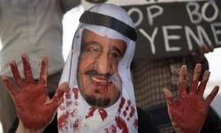 السعودية تنتهج سياسة الأرض المحروقة ضد اليمنيين 130 طفلاً يموتون يومياً