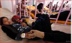 الأمم المتحدة تدعو تحالف العدوان لإنهاء حصار اليمن