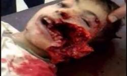 تقرير أممي سرّي: التحالف السعودي قتل مئات الأطفال
