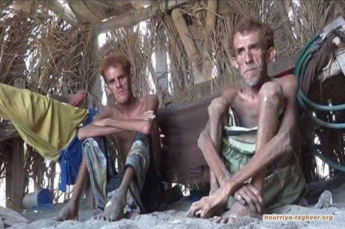 متجاهلة حصار التحالف السعودي ..الأمم المتحدة تحذر من مجاعة وشيكة باليمن