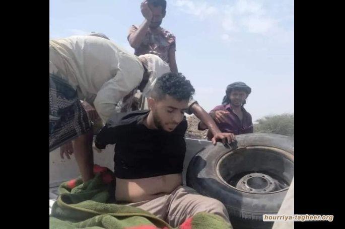 """خارجية صنعاء تعلق على مقتل الشاب """"السنباني"""" وتسجيل صوتي لأحد أقربائه يكشف القصة كاملة خلف قتله وتعذيبه في لحج"""