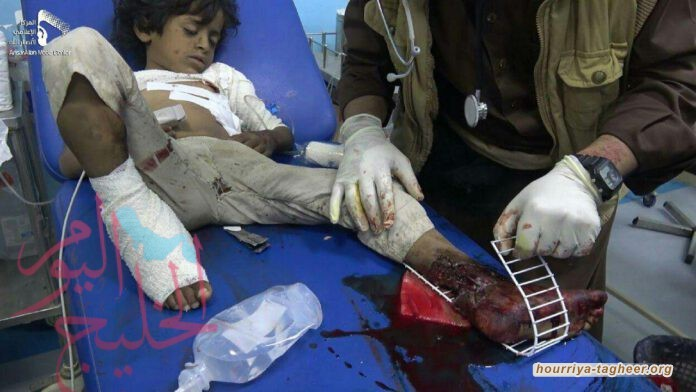 مجزرة الجوف، عندما تقتل الأمم المتحدة اليمنيين بصمتها
