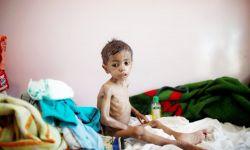 كورونا.. الوباء الذي أفزع الصين وأيقظ العالم على كارثة اليمن