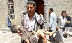 الصفحة الاجنبية : السعودية ترتكب جرائم حرب في اليمن